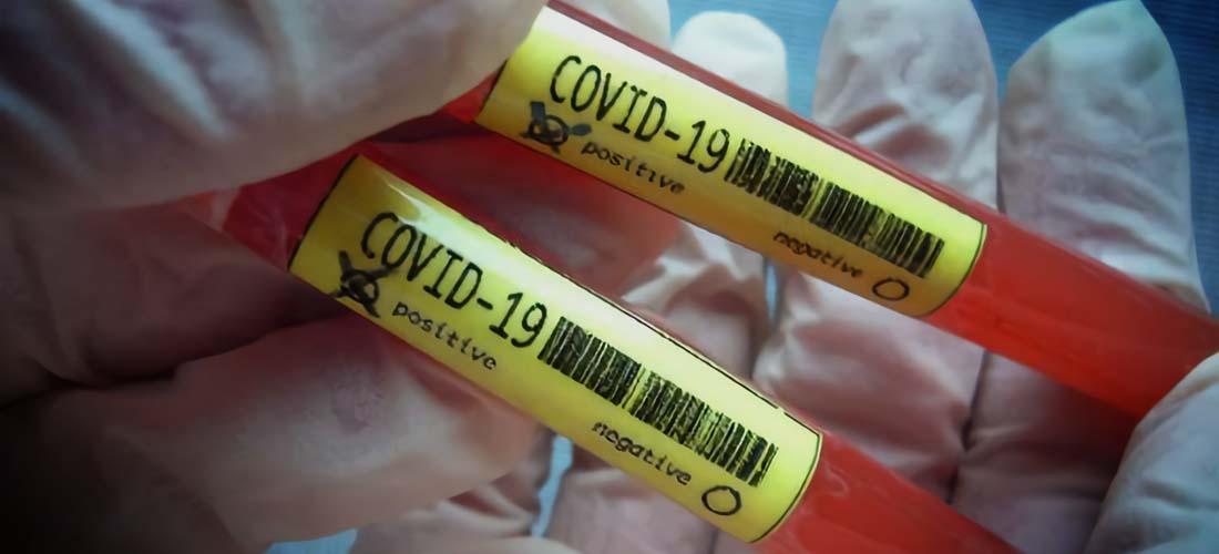 tips menghadapi status darurat pandemi covid-19